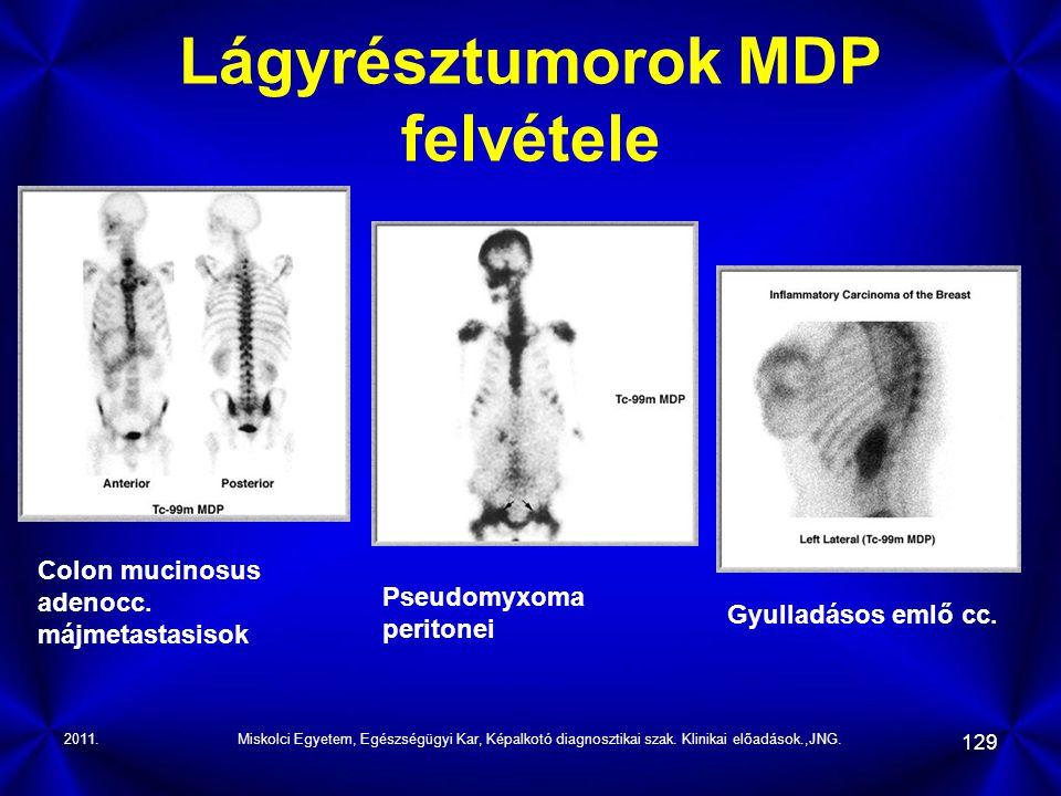 2011.Miskolci Egyetem, Egészségügyi Kar, Képalkotó diagnosztikai szak. Klinikai előadások.,JNG. 129 Lágyrésztumorok MDP felvétele Colon mucinosus aden