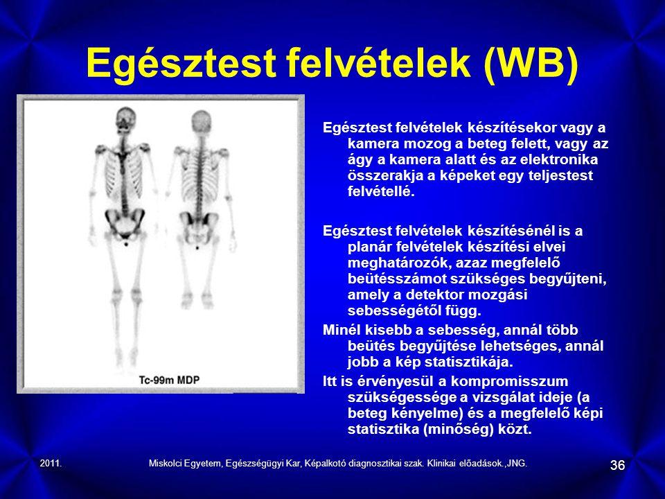 2011.Miskolci Egyetem, Egészségügyi Kar, Képalkotó diagnosztikai szak. Klinikai előadások.,JNG. 36 Egésztest felvételek (WB) Egésztest felvételek kész