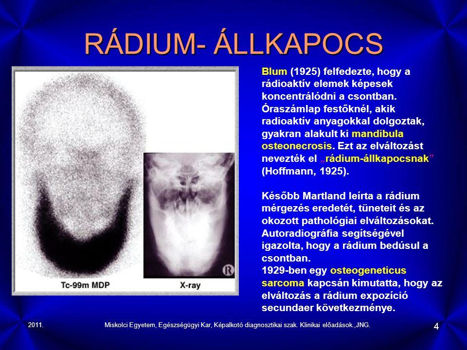 2011.Miskolci Egyetem, Egészségügyi Kar, Képalkotó diagnosztikai szak. Klinikai előadások.,JNG. 4 RÁDIUM- ÁLLKAPOCS Blum (1925) felfedezte, hogy a rád
