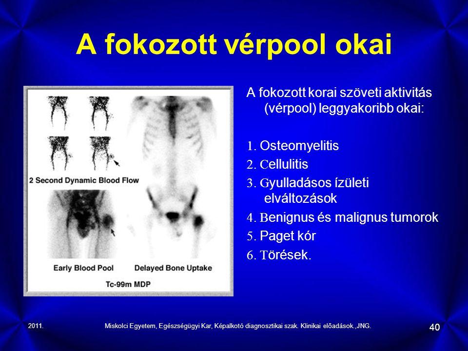 2011.Miskolci Egyetem, Egészségügyi Kar, Képalkotó diagnosztikai szak. Klinikai előadások.,JNG. 40 A fokozott vérpool okai A fokozott korai szöveti ak