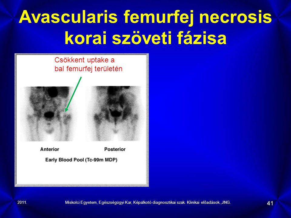 2011.Miskolci Egyetem, Egészségügyi Kar, Képalkotó diagnosztikai szak. Klinikai előadások.,JNG. 41 Avascularis femurfej necrosis korai szöveti fázisa