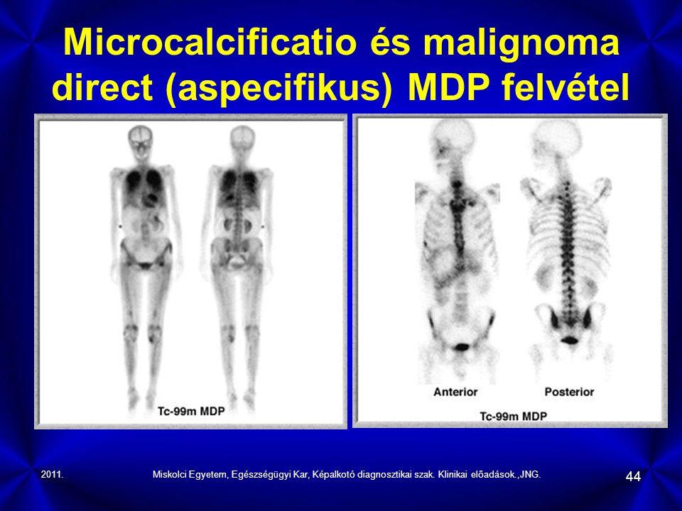 2011.Miskolci Egyetem, Egészségügyi Kar, Képalkotó diagnosztikai szak. Klinikai előadások.,JNG. 44 Microcalcificatio és malignoma direct (aspecifikus)