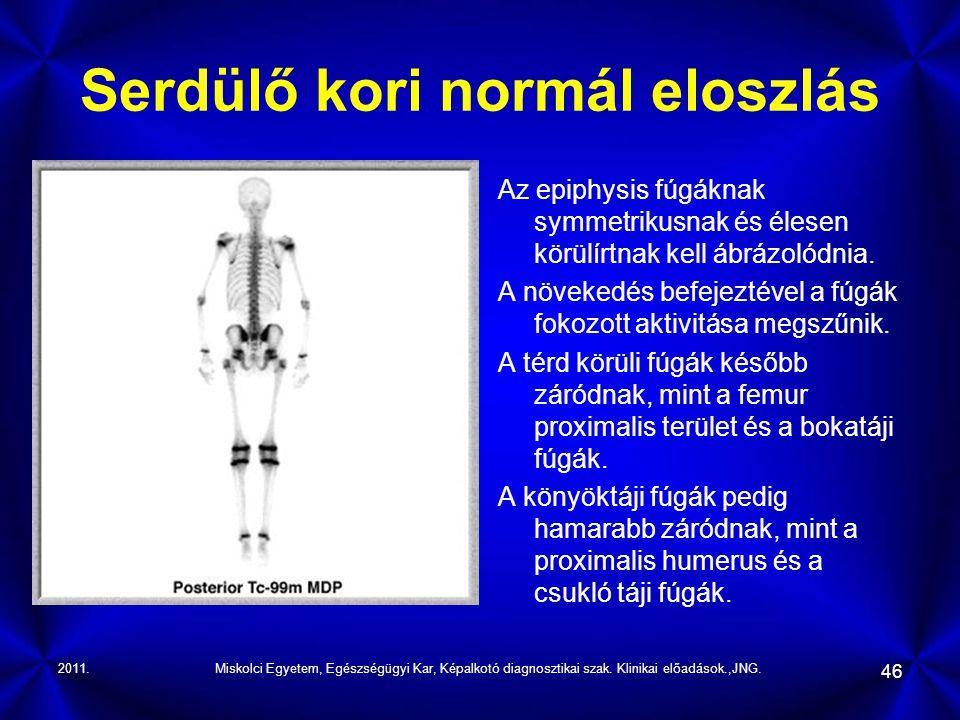 2011.Miskolci Egyetem, Egészségügyi Kar, Képalkotó diagnosztikai szak. Klinikai előadások.,JNG. 46 Serdülő kori normál eloszlás Az epiphysis fúgáknak