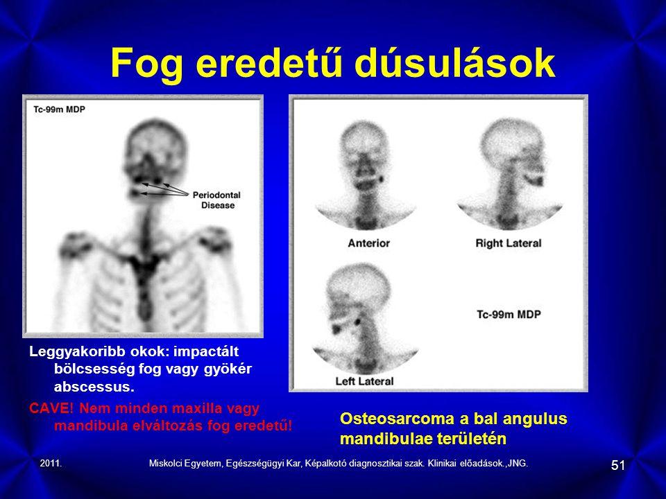 2011.Miskolci Egyetem, Egészségügyi Kar, Képalkotó diagnosztikai szak. Klinikai előadások.,JNG. 51 Fog eredetű dúsulások Leggyakoribb okok: impactált