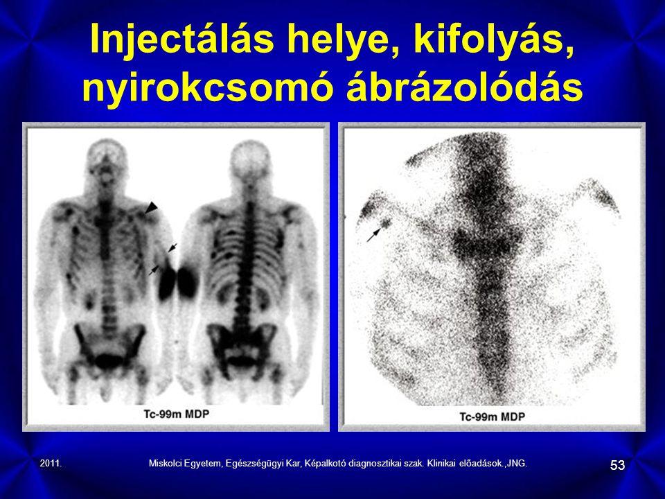 2011.Miskolci Egyetem, Egészségügyi Kar, Képalkotó diagnosztikai szak. Klinikai előadások.,JNG. 53 Injectálás helye, kifolyás, nyirokcsomó ábrázolódás