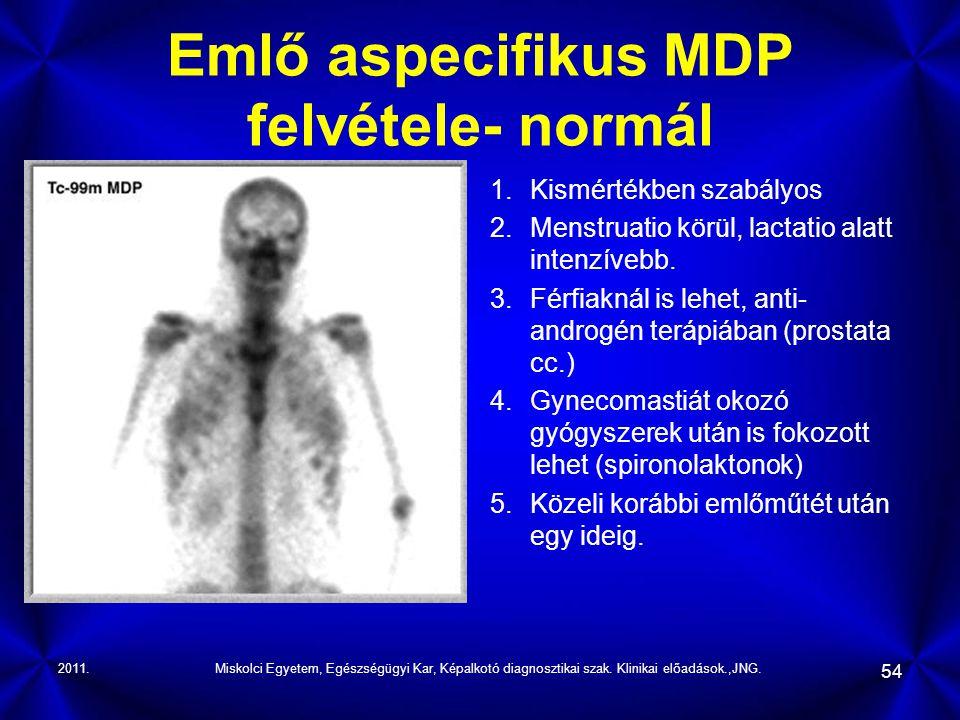 2011.Miskolci Egyetem, Egészségügyi Kar, Képalkotó diagnosztikai szak. Klinikai előadások.,JNG. 54 Emlő aspecifikus MDP felvétele- normál 1.Kismértékb