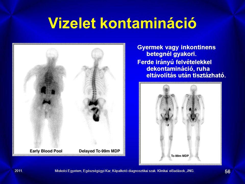 2011.Miskolci Egyetem, Egészségügyi Kar, Képalkotó diagnosztikai szak. Klinikai előadások.,JNG. 56 Vizelet kontamináció Gyermek vagy inkontinens beteg