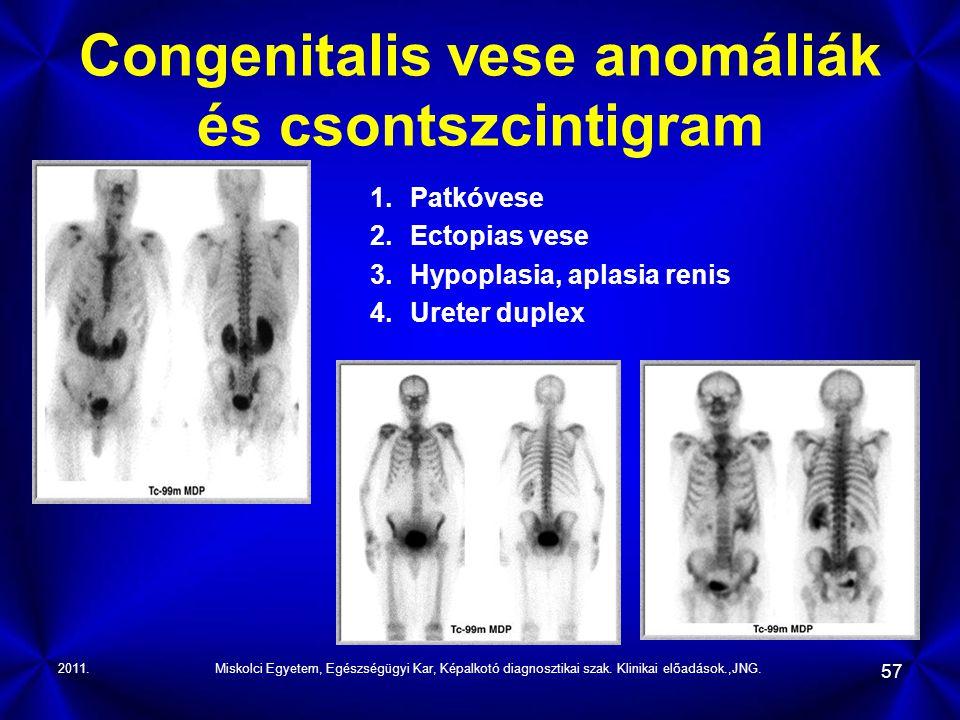 2011.Miskolci Egyetem, Egészségügyi Kar, Képalkotó diagnosztikai szak. Klinikai előadások.,JNG. 57 Congenitalis vese anomáliák és csontszcintigram 1.P