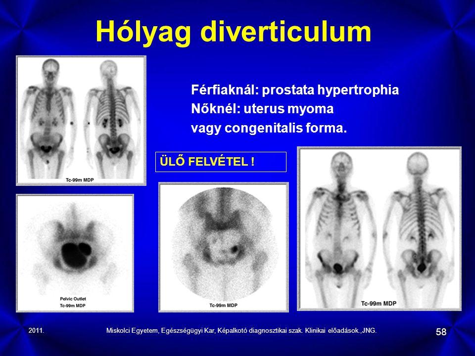 2011.Miskolci Egyetem, Egészségügyi Kar, Képalkotó diagnosztikai szak. Klinikai előadások.,JNG. 58 Hólyag diverticulum Férfiaknál: prostata hypertroph