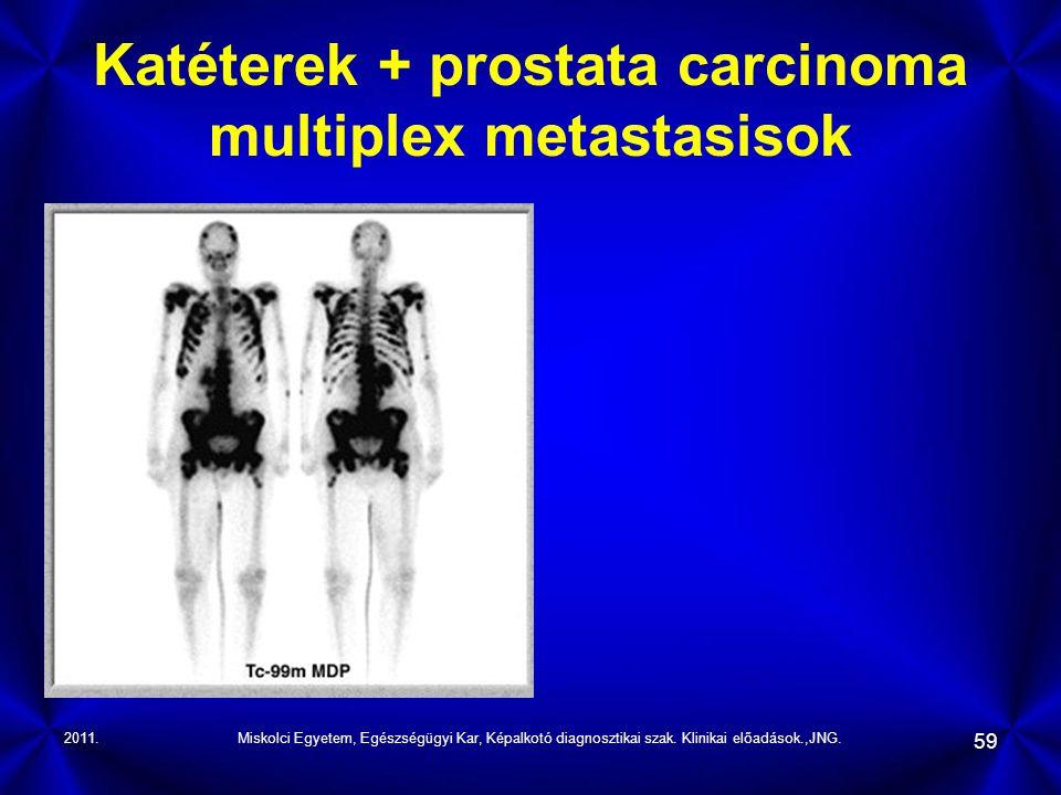 2011.Miskolci Egyetem, Egészségügyi Kar, Képalkotó diagnosztikai szak. Klinikai előadások.,JNG. 59 Katéterek + prostata carcinoma multiplex metastasis