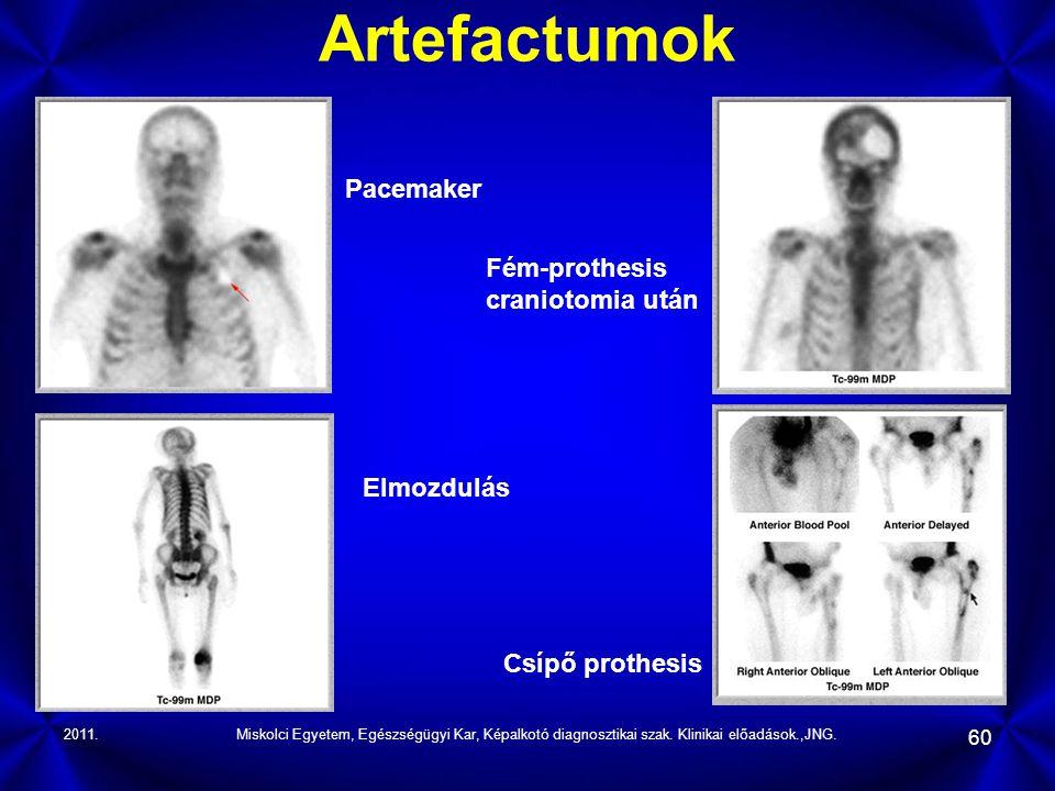 2011.Miskolci Egyetem, Egészségügyi Kar, Képalkotó diagnosztikai szak. Klinikai előadások.,JNG. 60 Artefactumok Pacemaker Elmozdulás Fém-prothesis cra