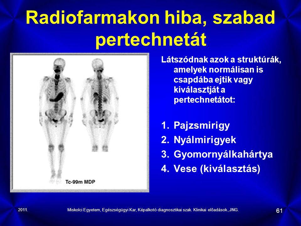 2011.Miskolci Egyetem, Egészségügyi Kar, Képalkotó diagnosztikai szak. Klinikai előadások.,JNG. 61 Radiofarmakon hiba, szabad pertechnetát Látszódnak