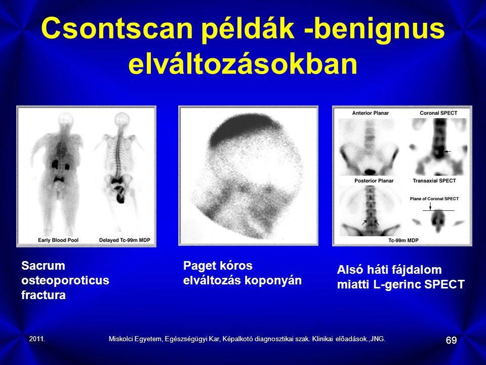 2011.Miskolci Egyetem, Egészségügyi Kar, Képalkotó diagnosztikai szak. Klinikai előadások.,JNG. 69 Csontscan példák -benignus elváltozásokban Sacrum o