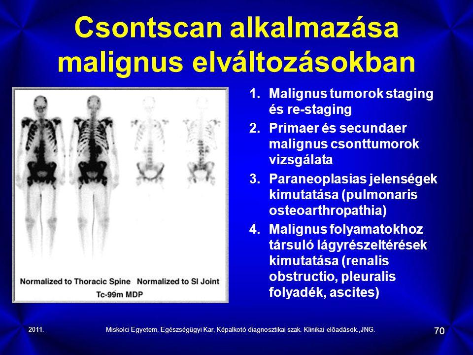 2011.Miskolci Egyetem, Egészségügyi Kar, Képalkotó diagnosztikai szak. Klinikai előadások.,JNG. 70 Csontscan alkalmazása malignus elváltozásokban 1.Ma