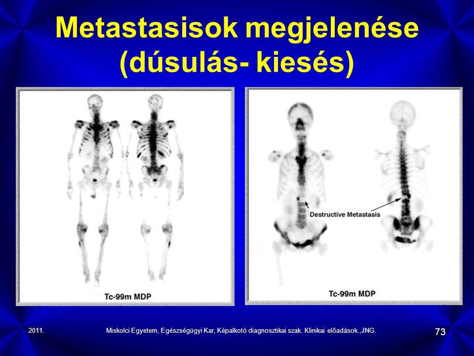 2011.Miskolci Egyetem, Egészségügyi Kar, Képalkotó diagnosztikai szak. Klinikai előadások.,JNG. 73 Metastasisok megjelenése (dúsulás- kiesés)