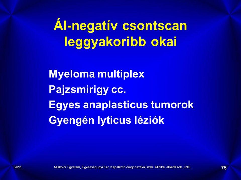 2011.Miskolci Egyetem, Egészségügyi Kar, Képalkotó diagnosztikai szak. Klinikai előadások.,JNG. 75 Ál-negatív csontscan leggyakoribb okai Myeloma mult