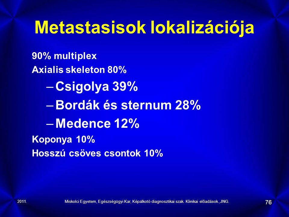 2011.Miskolci Egyetem, Egészségügyi Kar, Képalkotó diagnosztikai szak. Klinikai előadások.,JNG. 76 Metastasisok lokalizációja 90% multiplex Axialis sk