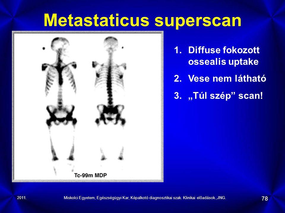 2011.Miskolci Egyetem, Egészségügyi Kar, Képalkotó diagnosztikai szak. Klinikai előadások.,JNG. 78 Metastaticus superscan 1.Diffuse fokozott ossealis