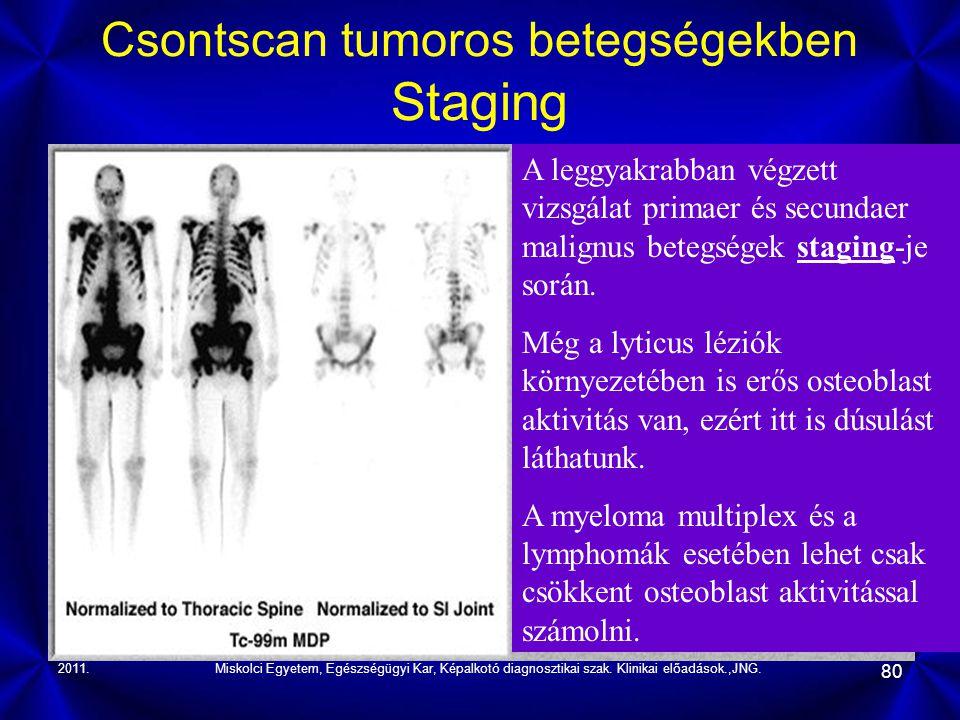 2011.Miskolci Egyetem, Egészségügyi Kar, Képalkotó diagnosztikai szak. Klinikai előadások.,JNG. 80 Csontscan tumoros betegségekben Staging A leggyakra