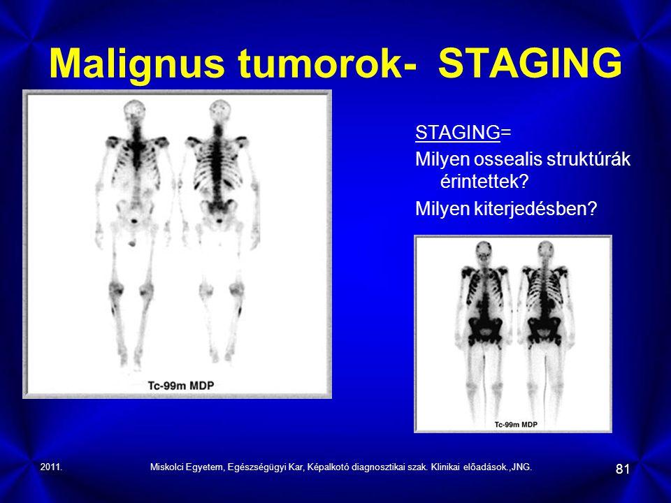 2011.Miskolci Egyetem, Egészségügyi Kar, Képalkotó diagnosztikai szak. Klinikai előadások.,JNG. 81 Malignus tumorok- STAGING STAGING= Milyen ossealis