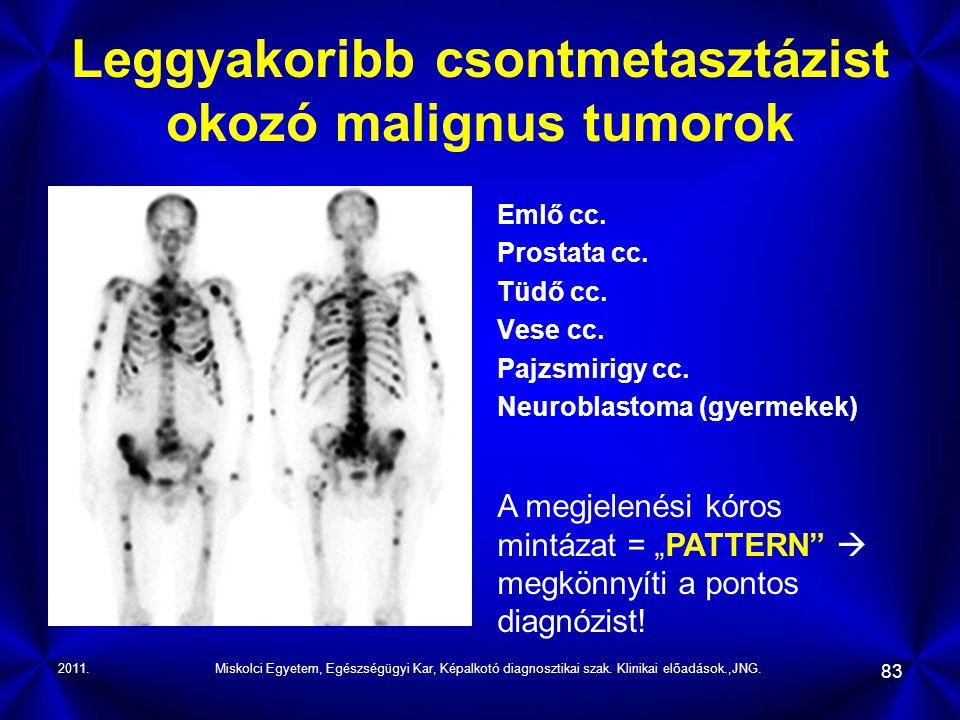 2011.Miskolci Egyetem, Egészségügyi Kar, Képalkotó diagnosztikai szak. Klinikai előadások.,JNG. 83 Leggyakoribb csontmetasztázist okozó malignus tumor