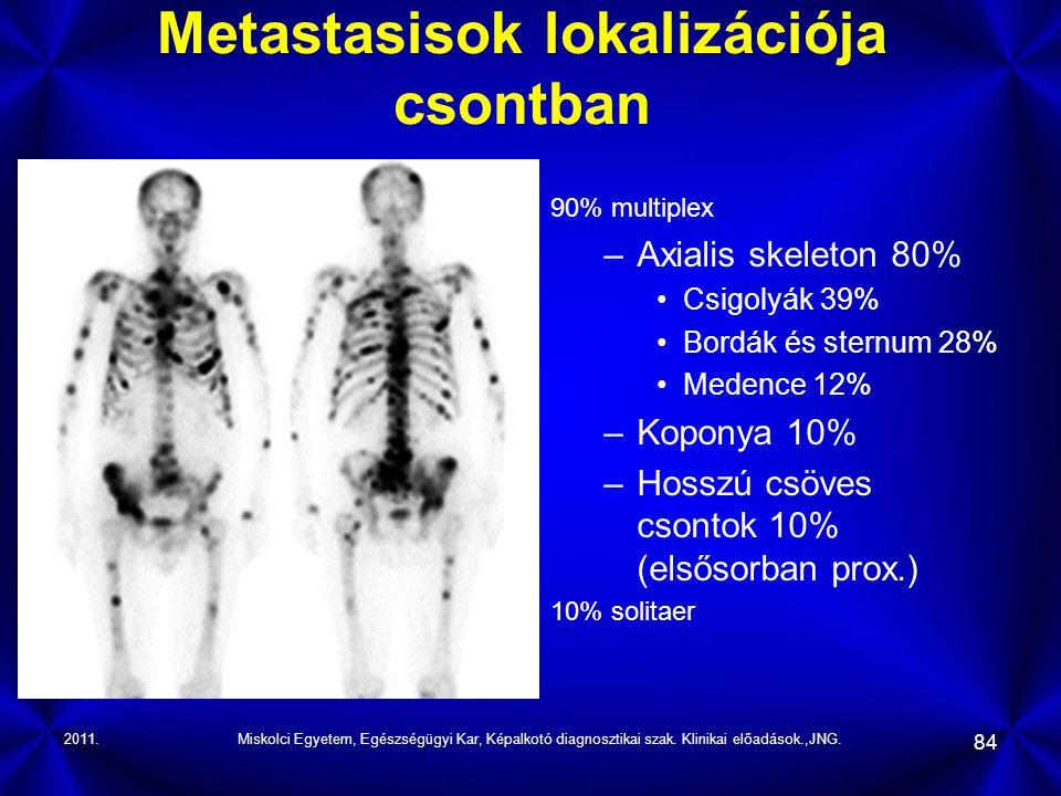 2011.Miskolci Egyetem, Egészségügyi Kar, Képalkotó diagnosztikai szak. Klinikai előadások.,JNG. 84 Metastasisok lokalizációja csontban 90% multiplex –