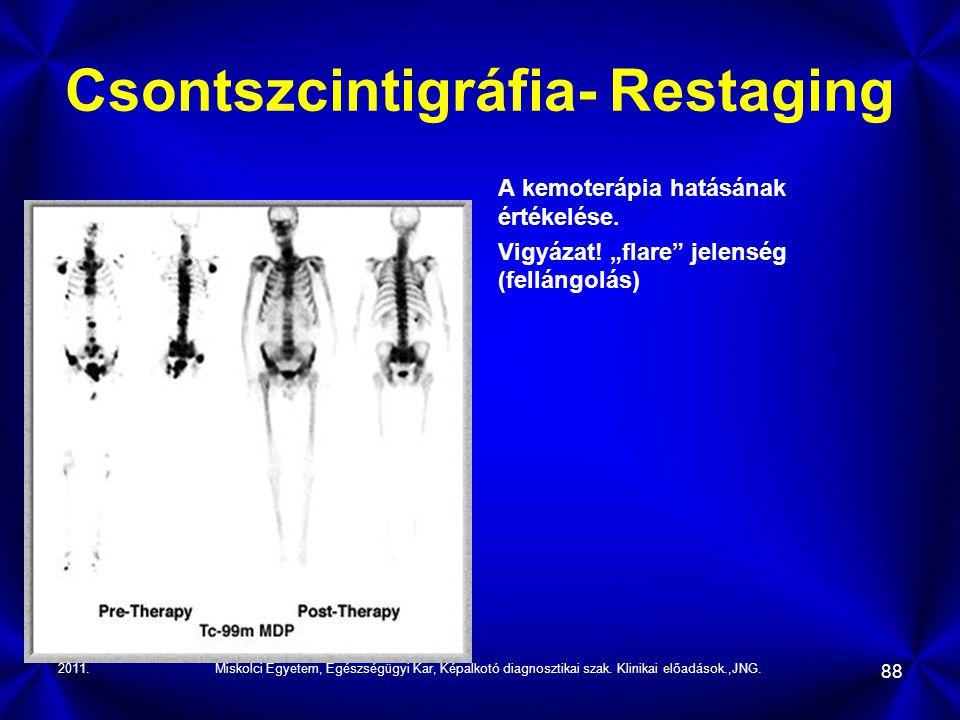 2011.Miskolci Egyetem, Egészségügyi Kar, Képalkotó diagnosztikai szak. Klinikai előadások.,JNG. 88 Csontszcintigráfia- Restaging A kemoterápia hatásán