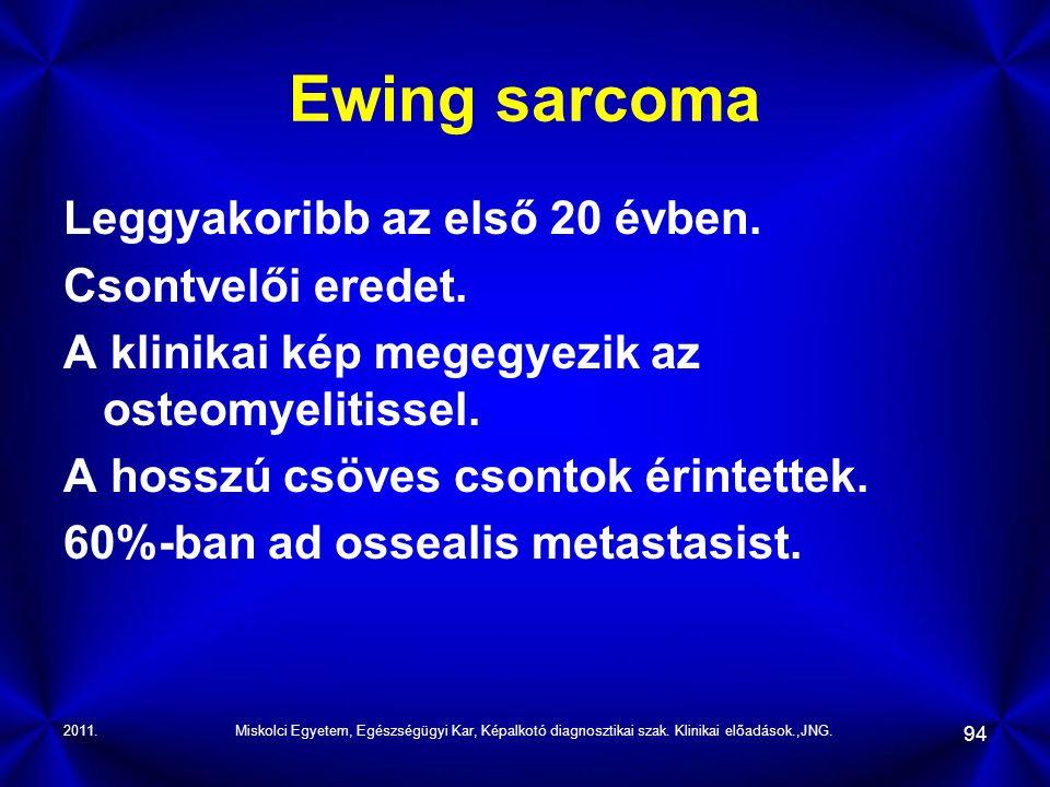 2011.Miskolci Egyetem, Egészségügyi Kar, Képalkotó diagnosztikai szak. Klinikai előadások.,JNG. 94 Ewing sarcoma Leggyakoribb az első 20 évben. Csontv