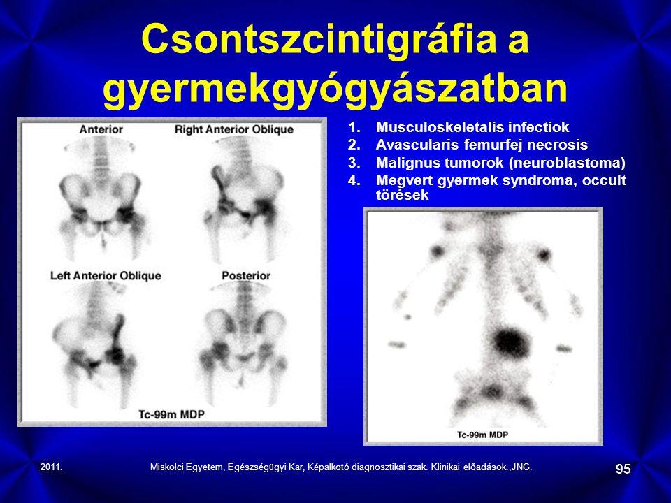 2011.Miskolci Egyetem, Egészségügyi Kar, Képalkotó diagnosztikai szak. Klinikai előadások.,JNG. 95 Csontszcintigráfia a gyermekgyógyászatban 1.Musculo