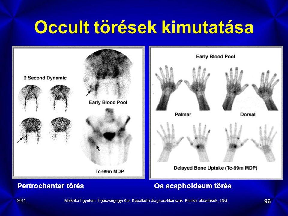 2011.Miskolci Egyetem, Egészségügyi Kar, Képalkotó diagnosztikai szak. Klinikai előadások.,JNG. 96 Occult törések kimutatása Pertrochanter törésOs sca