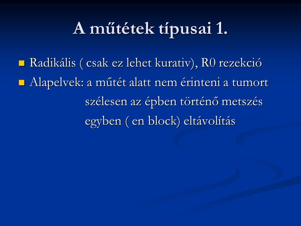 A műtétek típusai 1. Radikális ( csak ez lehet kurativ), R0 rezekció Radikális ( csak ez lehet kurativ), R0 rezekció Alapelvek: a műtét alatt nem érin