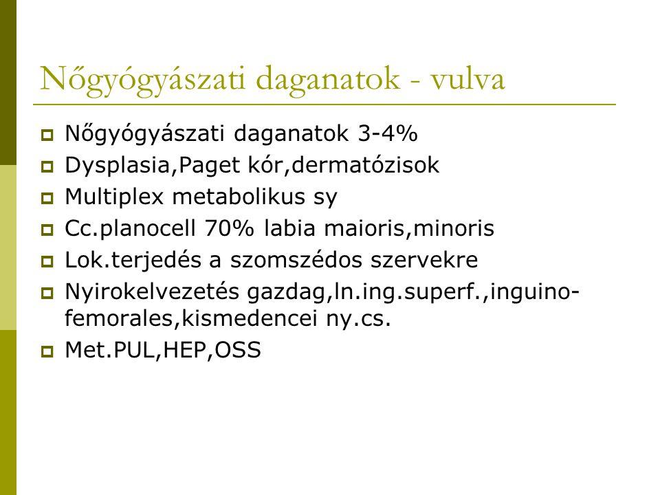 Nőgyógyászati daganatok - vulva  Nőgyógyászati daganatok 3-4%  Dysplasia,Paget kór,dermatózisok  Multiplex metabolikus sy  Cc.planocell 70% labia maioris,minoris  Lok.terjedés a szomszédos szervekre  Nyirokelvezetés gazdag,ln.ing.superf.,inguino- femorales,kismedencei ny.cs.