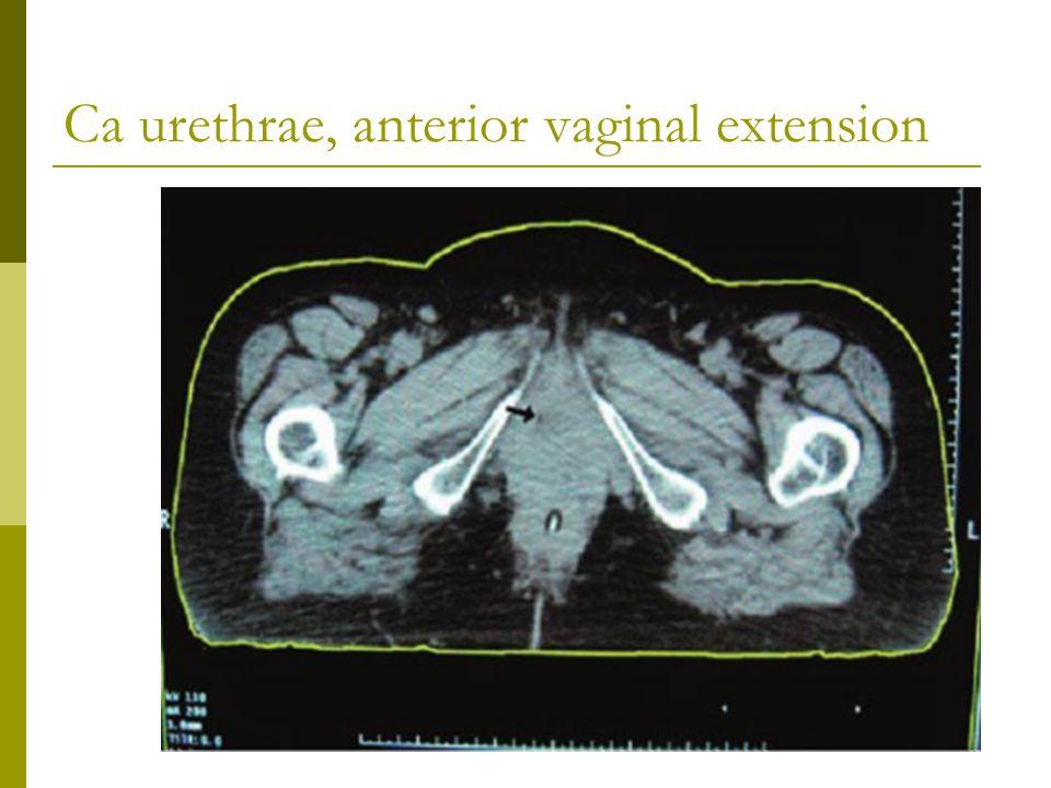 Ca urethrae, anterior vaginal extension