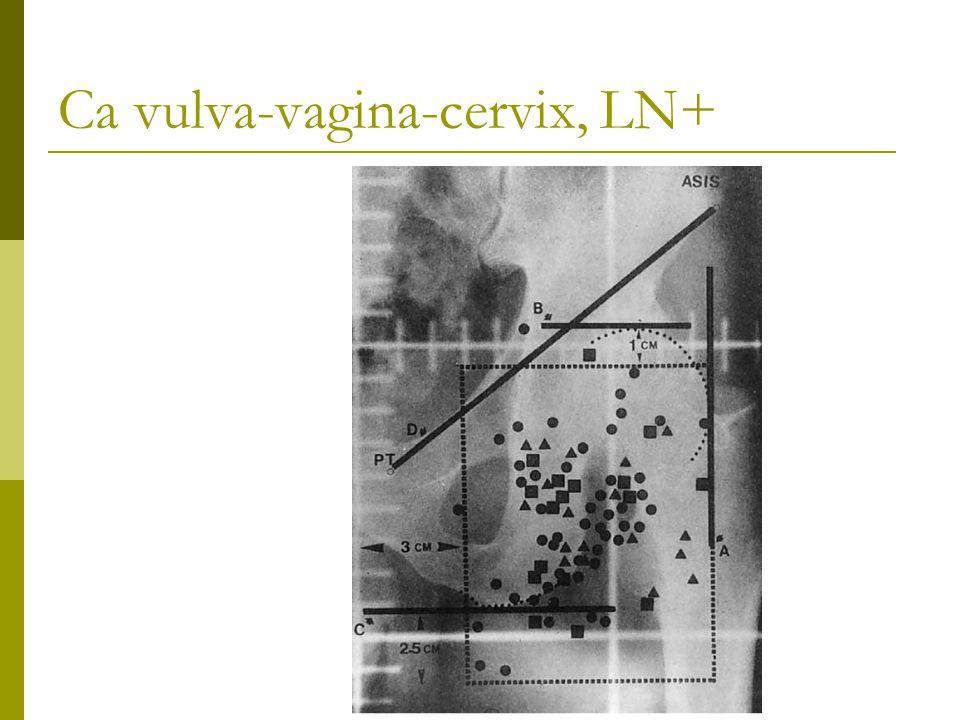 Ca vulva-vagina-cervix, LN+