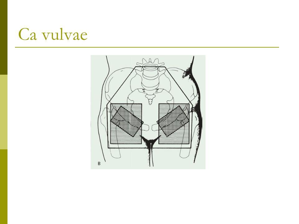 Ca vulvae