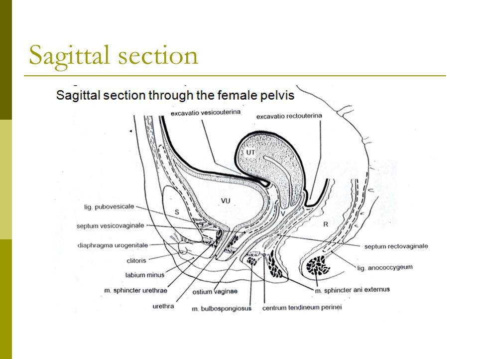 Lymphatic drainage vulvae  1. spf.ing.  2.deep femoral  3.iliac LN