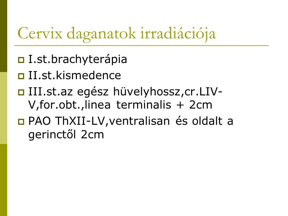 Cervix daganatok irradiációja  I.st.brachyterápia  II.st.kismedence  III.st.az egész hüvelyhossz,cr.LIV- V,for.obt.,linea terminalis + 2cm  PAO ThXII-LV,ventralisan és oldalt a gerinctől 2cm