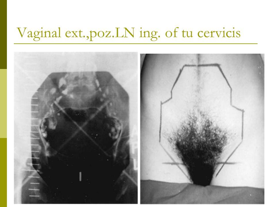 Vaginal ext.,poz.LN ing. of tu cervicis