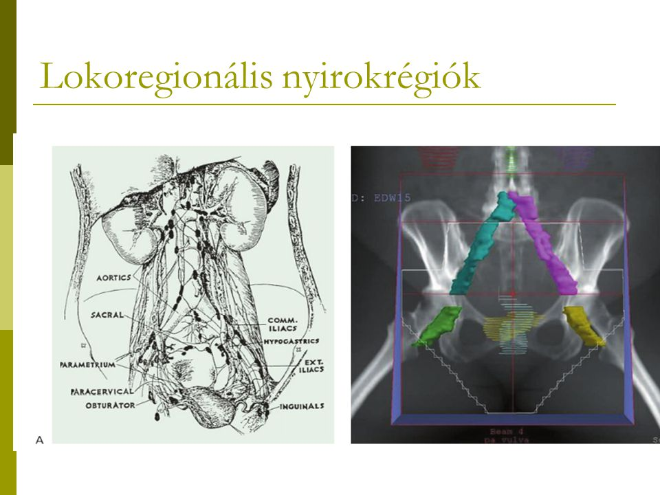 Vagina tumorok sugárterápiás indikációi II. II-IV.A státusz  Komb.sugárkezelés javasolt.
