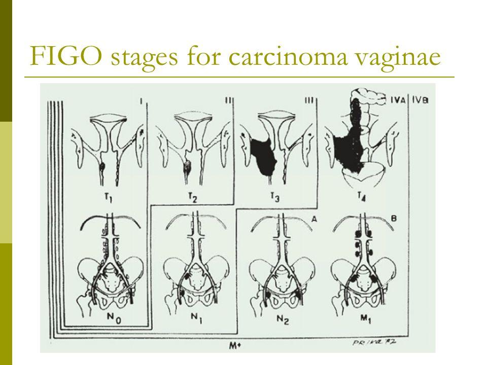 FIGO stages for carcinoma vaginae