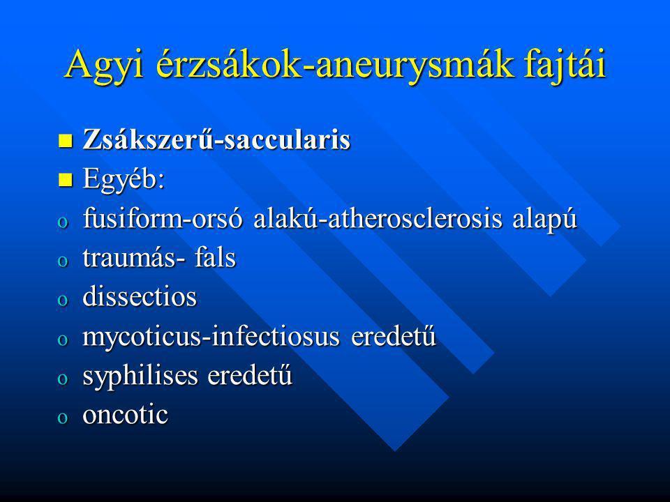 Agyi érzsákok-aneurysmák fajtái Zsákszerű-saccularis Zsákszerű-saccularis Egyéb: Egyéb: o fusiform-orsó alakú-atherosclerosis alapú o traumás- fals o