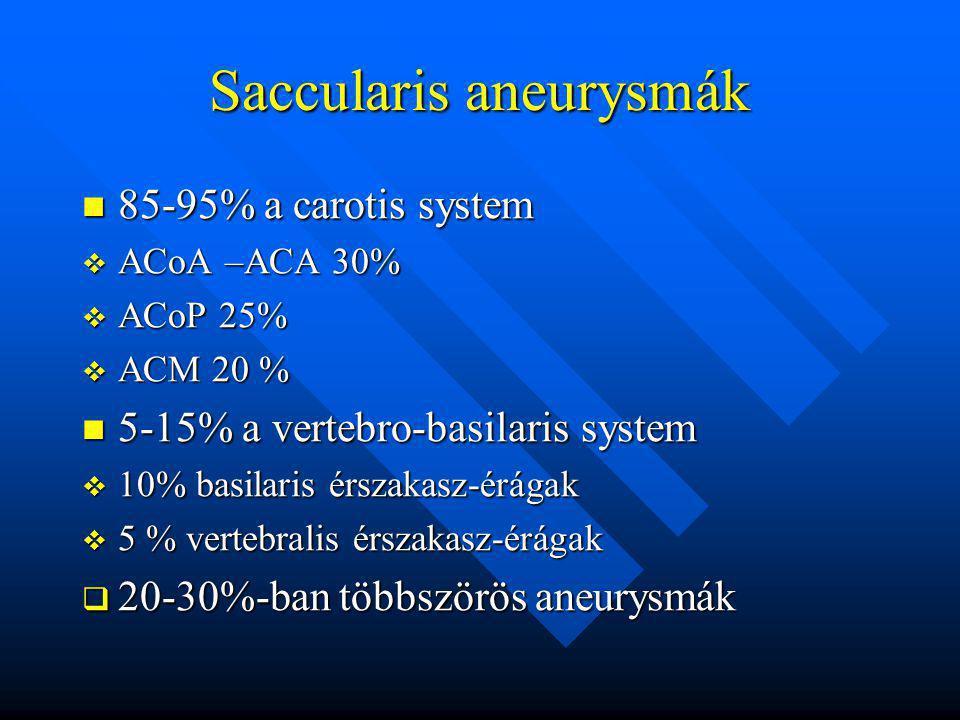Saccularis aneurysmák 85-95% a carotis system 85-95% a carotis system  ACoA –ACA 30%  ACoP 25%  ACM 20 % 5-15% a vertebro-basilaris system 5-15% a