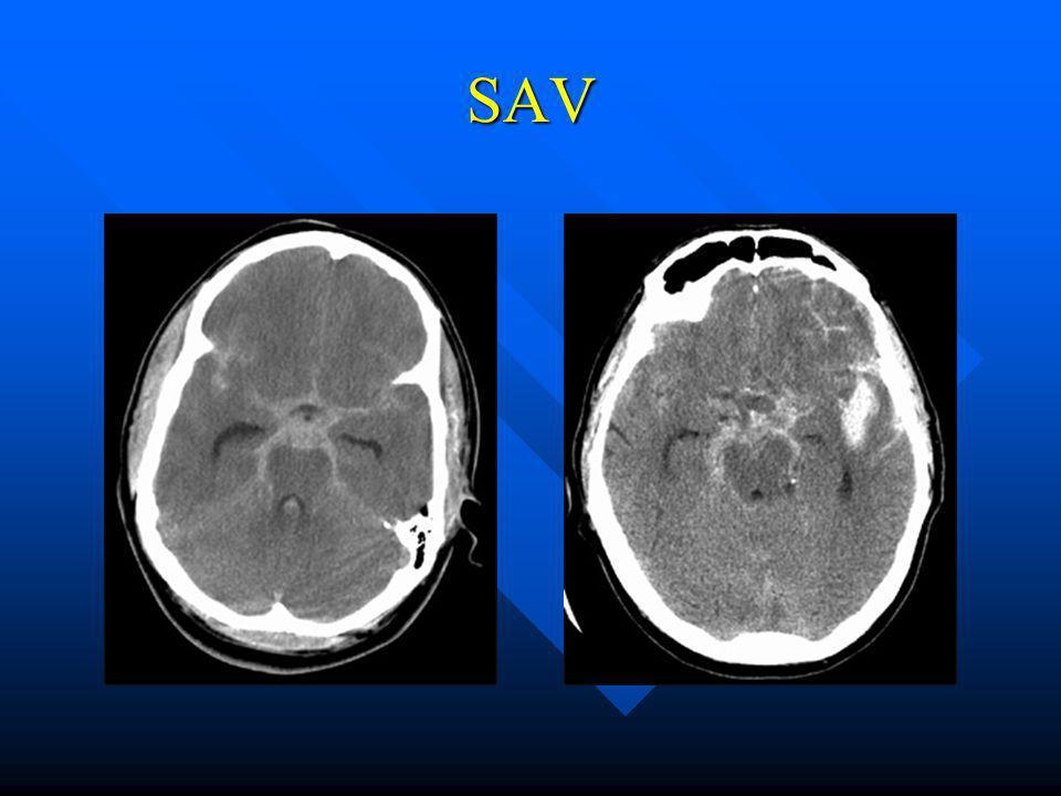 ISAT study International Subarachnoid Aneurysm Trial International Subarachnoid Aneurysm Trial Nemzetközi többcentrumos vizsgálat, melyben a vérzett aneurysmák clippel vagy coillal történő ellátását hasonlították össze.