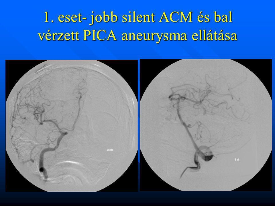1. eset- jobb silent ACM és bal vérzett PICA aneurysma ellátása