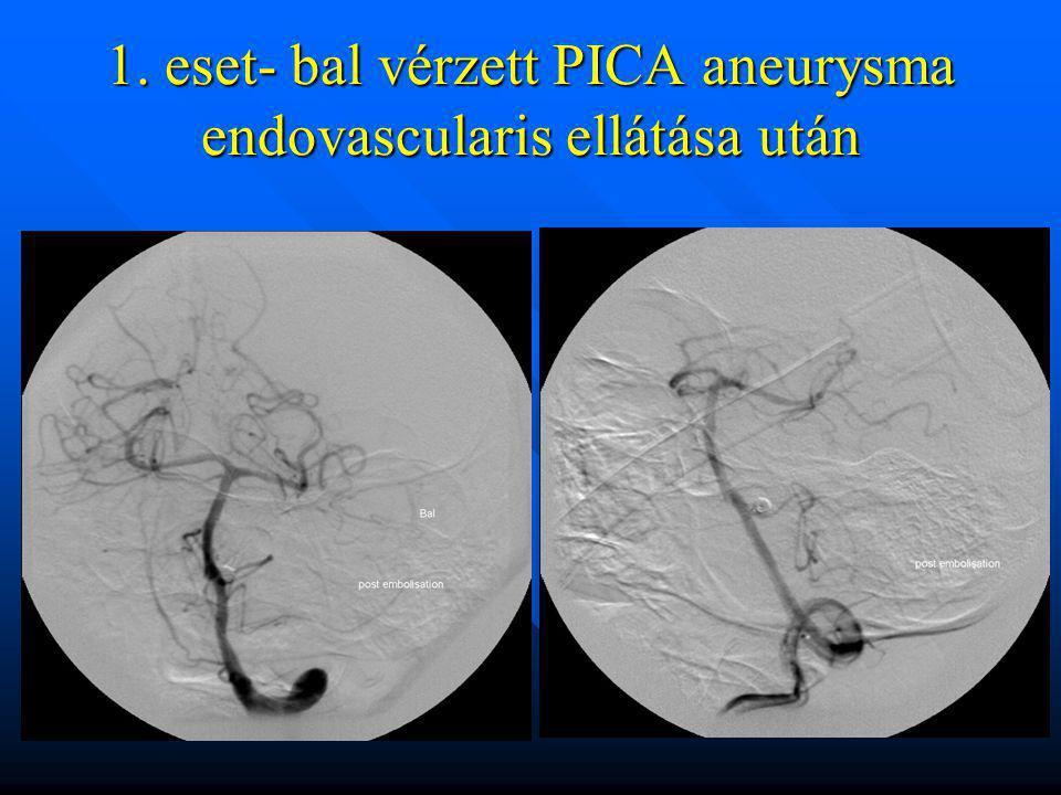 1. eset- bal vérzett PICA aneurysma endovascularis ellátása után
