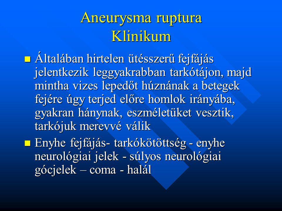 Vérzett aneurysmák szövődményei Vérzésből eredő neurológiai károsodás, agyvérzés Vérzésből eredő neurológiai károsodás, agyvérzés Reruptura, rávérzés, melynek mortalitása nagyon magas Reruptura, rávérzés, melynek mortalitása nagyon magas Agyérgörcs, vasospasmus, mely másodlagos károsodáshoz, agylágyuláshoz vezethet és a morbiditás legfontosabb tényezője- nem megoldott a kezelése Agyérgörcs, vasospasmus, mely másodlagos károsodáshoz, agylágyuláshoz vezethet és a morbiditás legfontosabb tényezője- nem megoldott a kezelése Hydrocephalus- agykamra kitágulása Hydrocephalus- agykamra kitágulása