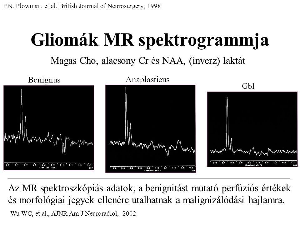 Gliomák MR spektrogrammja Magas Cho, alacsony Cr és NAA, (inverz) laktát Benignus Anaplasticus Gbl P.N. Plowman, et al. British Journal of Neurosurger