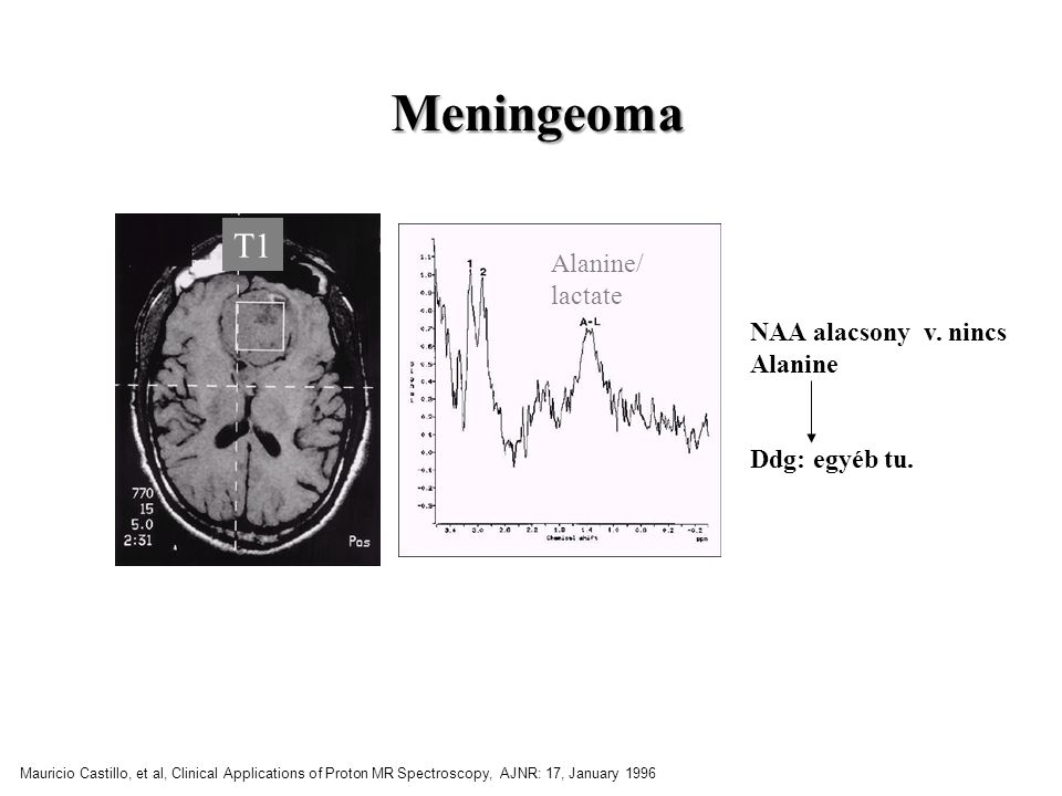 Meningeoma Alanine/ lactate T1 NAA alacsony v. nincs Alanine Ddg: egyéb tu. Mauricio Castillo, et al, Clinical Applications of Proton MR Spectroscopy,