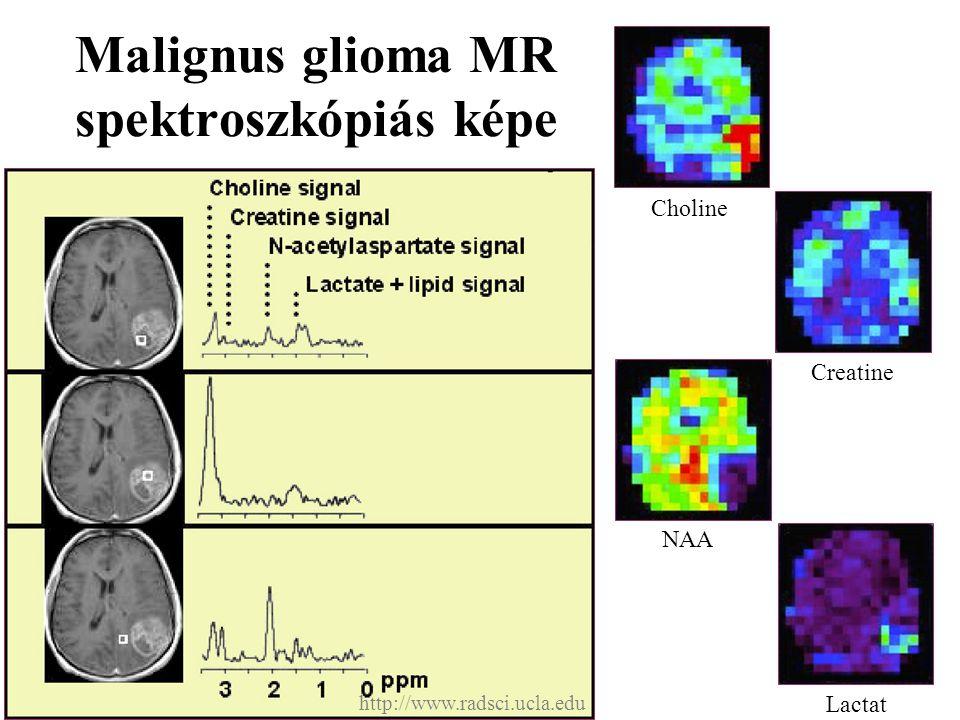 Malignus glioma MR spektroszkópiás képe Choline Creatine NAA Lactat http://www.radsci.ucla.edu