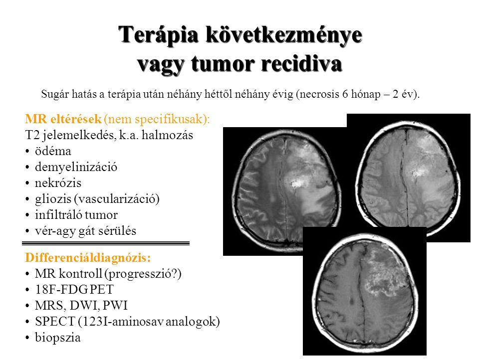 Terápia következménye vagy tumor recidiva Sugár hatás a terápia után néhány héttől néhány évig (necrosis 6 hónap – 2 év). MR eltérések (nem specifikus